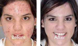 Natural Ways to Cure Acne and Acne Scars