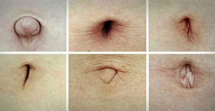 Belly button and health