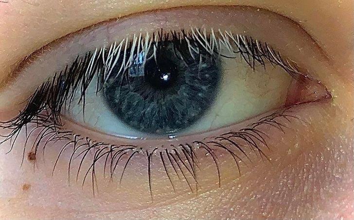 My eyelashes on my right eye