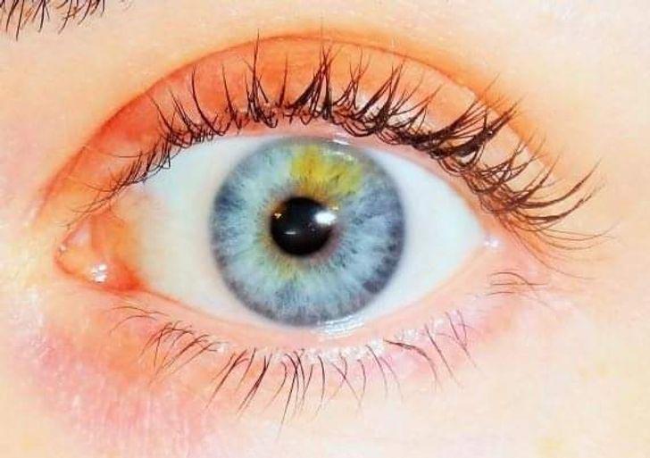 My left eye is my